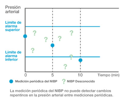Periodic-NIBP-measurement-cannot-catch-sudden-blood-pressure-change_ES.jpg