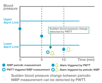 PWTT detects sudden blood pressure change