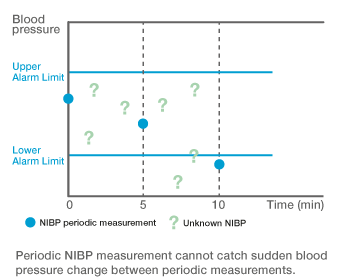Periodic NIBP measurement cannot catch sudden blood pressure change